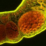 Image shows a fluorescence microscopy image of a parasite, with cells stained bright orange and yellow. The background is black.
